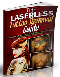 The-Laserless-Tattoo-Removal-Guide